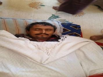 غدراً هذا مافعلته مليشيات الحوثي بشخصية بارزة في محافظة عمران شاهد صورته بعد الحادث